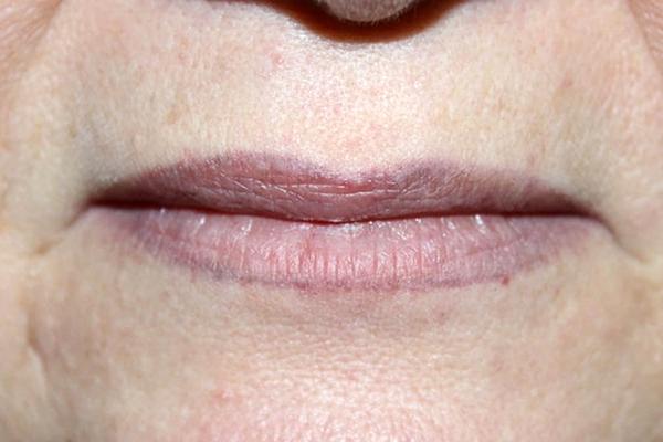 Синие губы