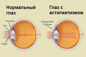 В омске операции на зрение